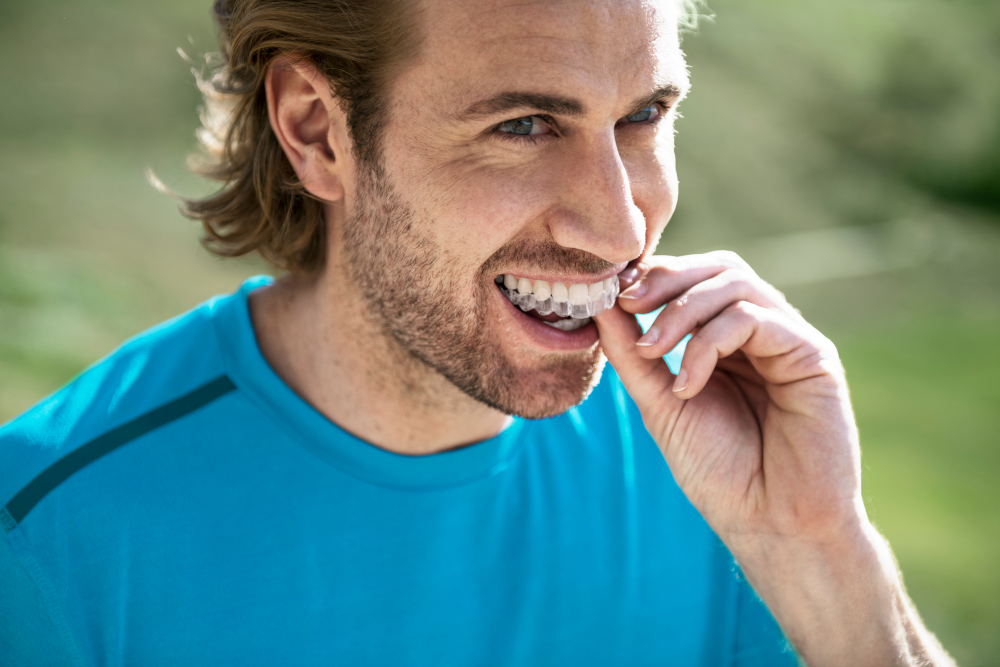 A Patient's Guide to Invisalign Harley Street